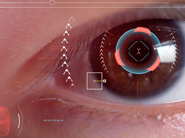 Article | Age-related Macular Degeneration